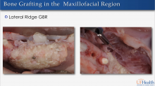 Two pictures of Bone Grafting in the Maxillofacial Region