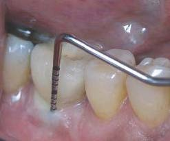 photo of gingival probe