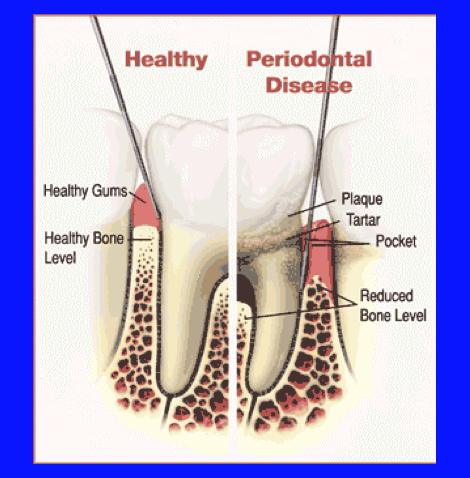 image of health versus perio disease