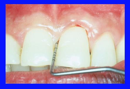 photo of periodontal probe